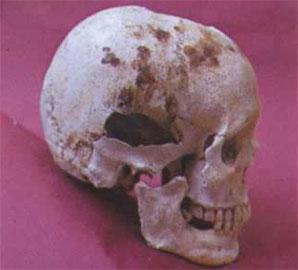 Κρανίο (δεξιά πλευρά). Διακρίνονται οι κηλίδες αίματος