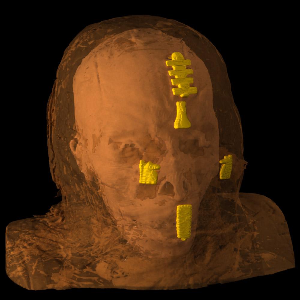 The Rhind mummy.
