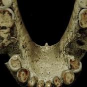 'Ancient humans' used toothpicks