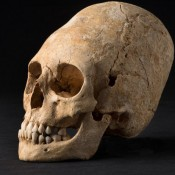 Deformed, Pointy Skull from Dark Ages Unearthed in Alsace