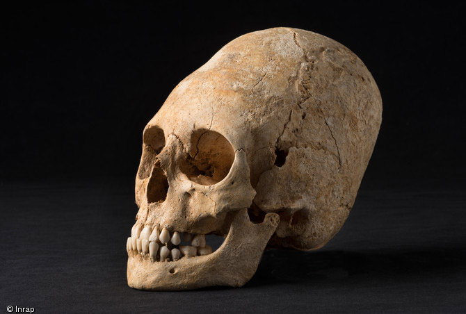 A woman's deformed skull was found in one of the tombs, which dates to around 1,650 years ago. Obernai, France. Photo: Inrap.