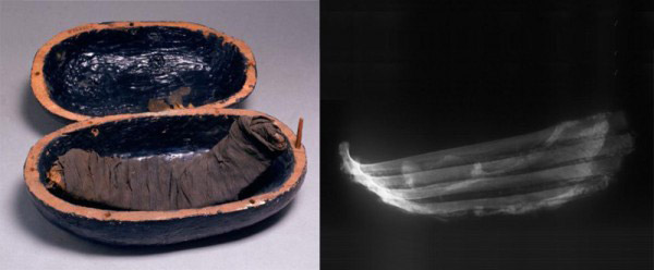 Mummified ribs found in the tomb of Thuyu and Yuyia, in box (left) and x-rayed (right). Valley of the Kings, 18th Dynasty. PNAS.