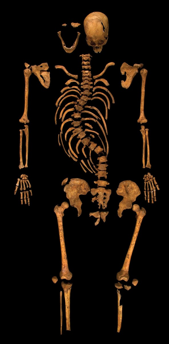 King Richard III's skeleton, found at Leicester, UK.