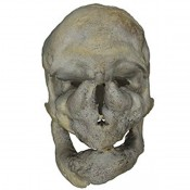 Beyond the Elephant Man: researching monsters
