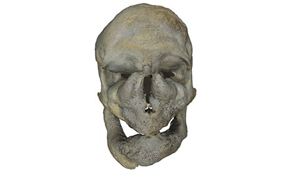A deformed skull, one of the 1,600 specimens available to explore in 3D on the Digitised Diseases website. Photo: The Guardian.