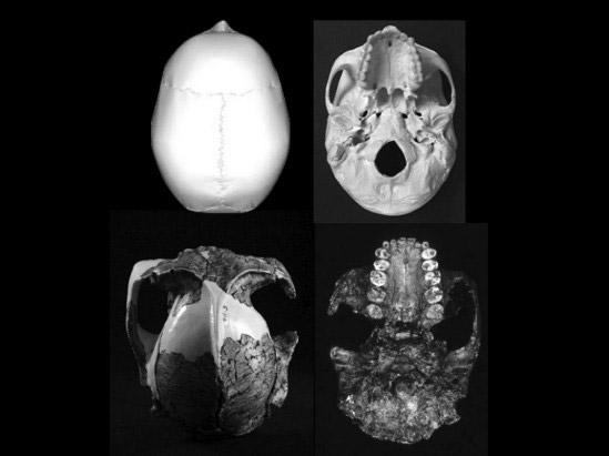 Left: Upper and lower views of cranium OH5 (Paranthropus boisei). Right: Same views of Homo Sapiens cranium. Photo: Image courtesy of University of Granada.