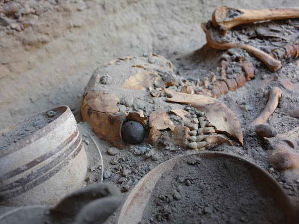 A skeleton with an artificial eyeball, which was unearthed in Burnt City in 2006. Photo: Tehran Times