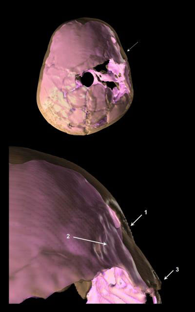3-D reconstruction of skull compound fracture and endocranial surface changes.Credit: Coqueugniot et al. (2014),