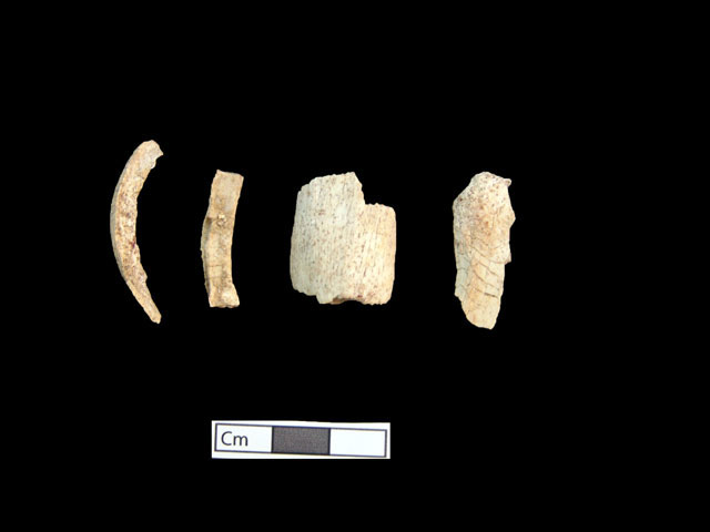 Fig. 12. Individual 5, bones subjected to high temperatures after cremation.
