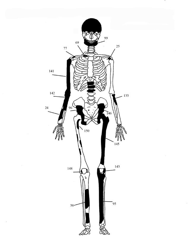 Fig. 1. Diagrammatic representation of the bones of individual 1.