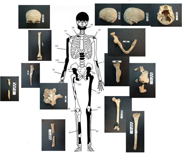 Fig. 2. Diagrammatic representation and images of the bones of individual 1.