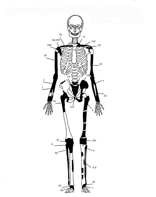 Fig. 3. Diagrammatic representation of the bones of individual 2.