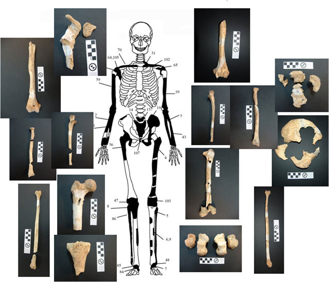 Fig. 4: Diagrammatic representation and images of the bones of individual 2.