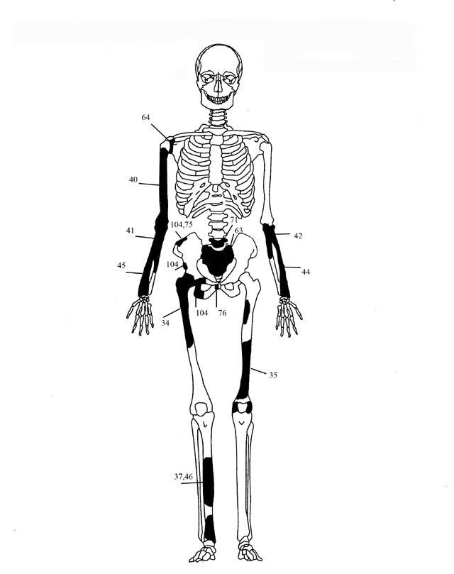 Fig. 5. Diagrammatic representation of the bones of individual 3.