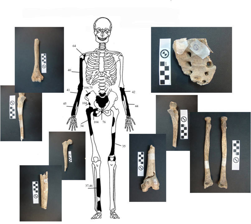 Fig. 6. Diagrammatic representation and images of the bones of individual 3.