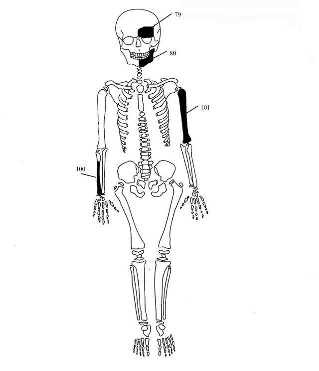 Fig. 7. Diagrammatic representation of the bones of individual 4.