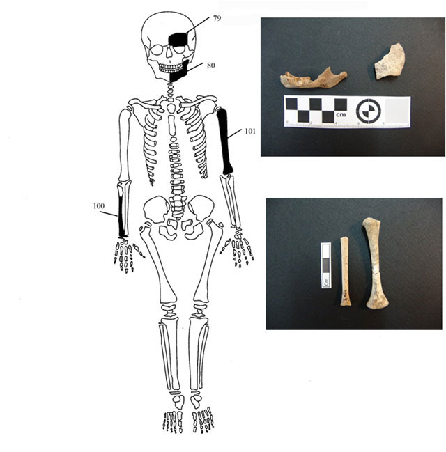 Fig. 8. Diagrammatic representation and images of the bones of individual 4.