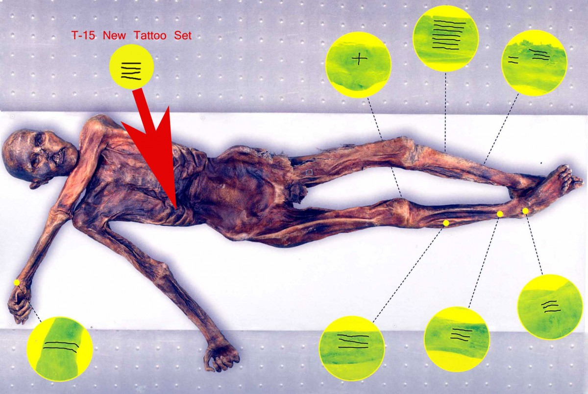 Illustration of Ötzi's new tattoos (after Samadelli 2009:52). The dark coloration of the body markings is probably related to multiple applications at the same loci over time. (©Lars Krutak)