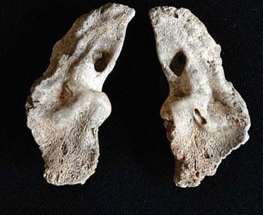 Twin fetal bones. Photo Credit: Vladimir Bazaliiskii.