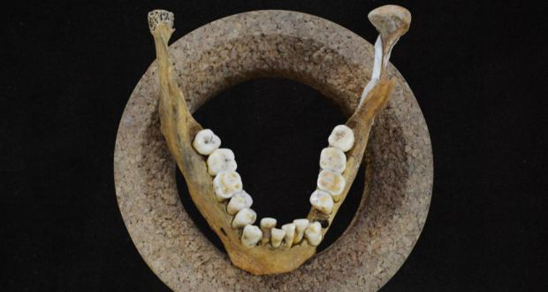 The crooked teeth and lower jaw of Early Neolithic farmer. Photo: Olivia Cheronet.