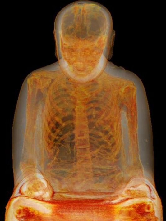 CT-scan of Buddha mummy. China. 1050-1150 CE. Reiss-Engelhorn-Museen. Mannheim. Photo: ©German-Mummy-Project Mannheim.