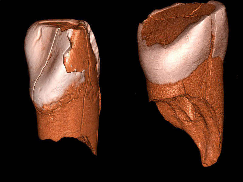 Three-dimensional digital models of the lower deciduous incisor from Riparo Bombrini (left) and the upper deciduous incisor from Grotta di Fumane (right). © Daniele Panetta.