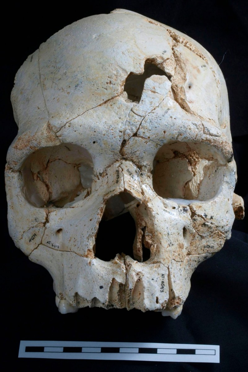 Pieced together from 52 fragments, the skull has two puncture wounds above its left eye, suggesting the victim was bludgeoned to death. Photo Credit: The Guardian / PR