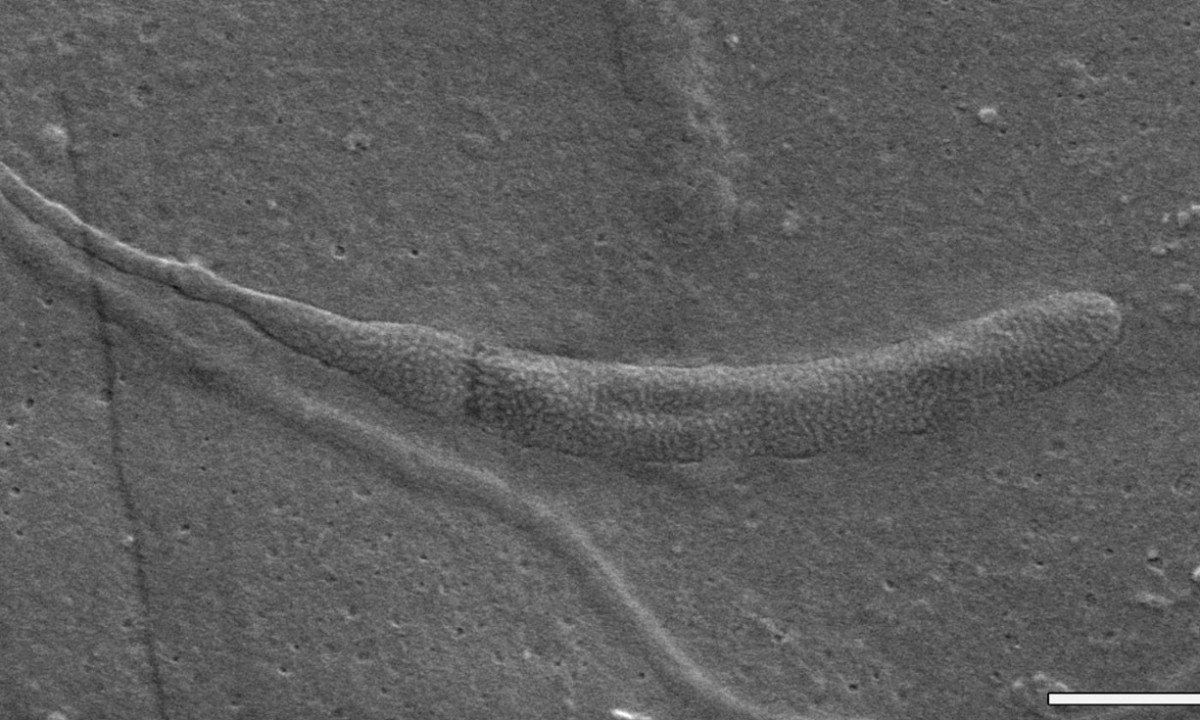 A fragment of the the fossilized spermatozoon. The bar at the bottom, one micron long, offers scaling. Photo Credit: Swedish Museum of Natural History / The Guardian.