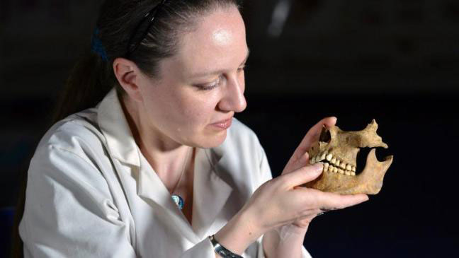Dr Anwen Caffell of Durham University demonstrates indications that the individuals used clay pipes. Photo Credit: Richard Rayner/NNP/Durham Univer/PA.