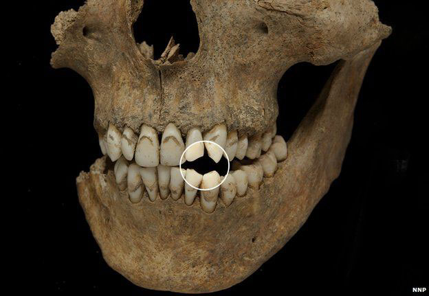 Some of the teeth showed signs of wear from pipe smoking. Photo Credit: NNP/BBC.