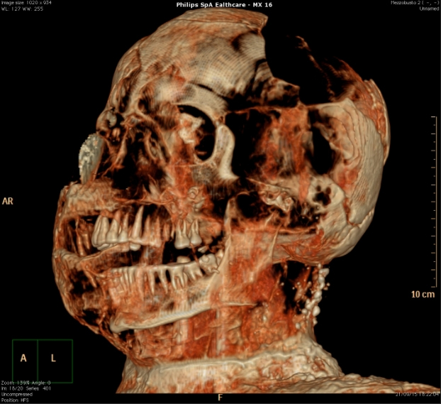 Scan attempting to bring the skull of a victim to life using a specific contrast dye that mimics the appearance of muscles and skin.