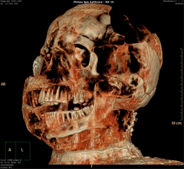 What S Inside The Pompeii Mummies