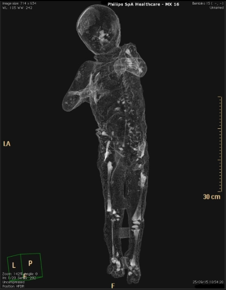 The little boy's clothing is visible in the plaster cast but now scans have revealed his tiny skeleton beneath these clothes.
