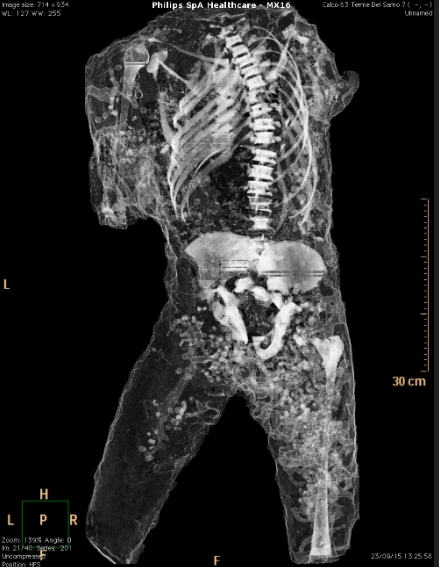The spine, ribs and pelvis of a victim revealed.