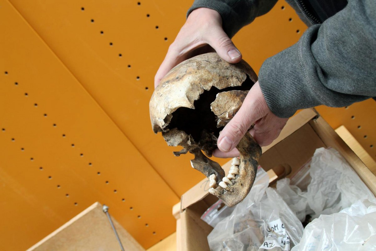 Skull of young girl suffering from syphilis. Credit: Birgitte Svennevig/SDU