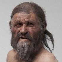 Pathogens found in Ötzi's stomach
