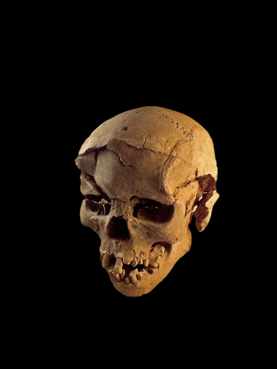 Skull with multiple lesions on front and left side, consistent with wounds from a blunt implement.