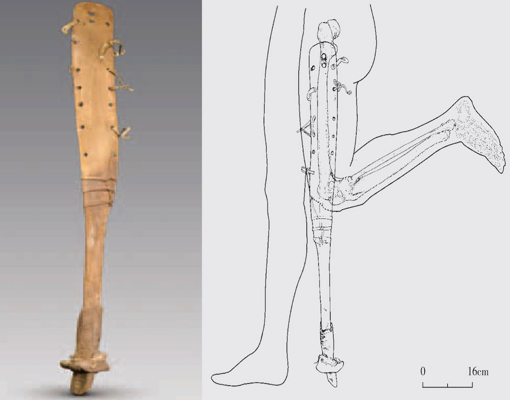 The prosthetic leg and drawing showing it attached to the leg. Credit: Images courtesy Chinese Archaeology.