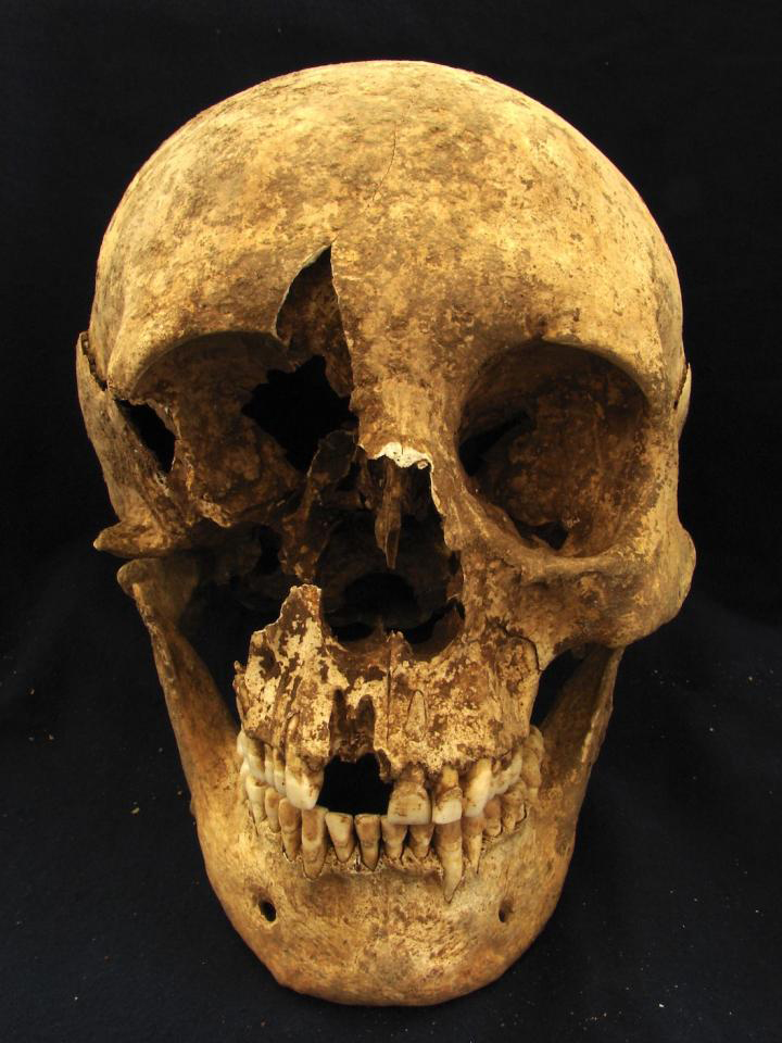 Skull of skeleton T15, a 35- to 50-year-old male who was buried in a cemetery in the modern neighborhood of Casal Bertone, Rome, Italy. Isotope ratios suggest he may have been born near the Alps. Credit: Kristina Killgrove.