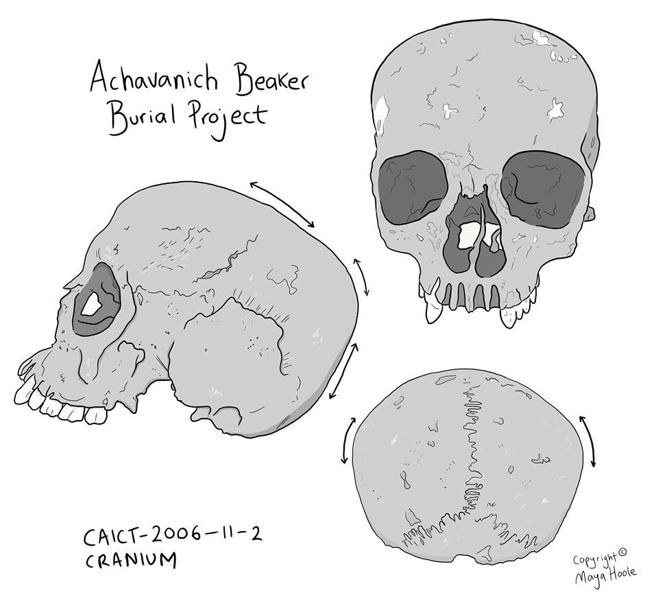 Maya Hoole has created illustrations to demonstrate the uneven shape of the skull. Image Credit: Maya Hoole.