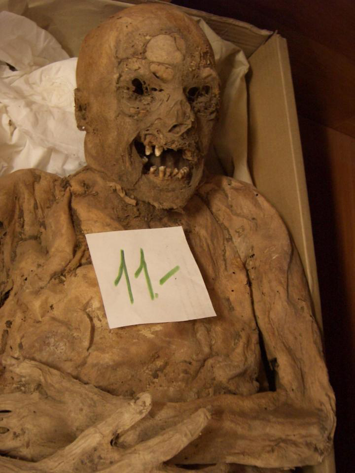 A Hungarian mummy's genes are helping scientists better understand the causes of colorrectal cancer. Credit: Tel Aviv University.