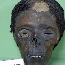 Egyptian mummified head bears traces of dermatosis linked with skin bleaching cosmetics