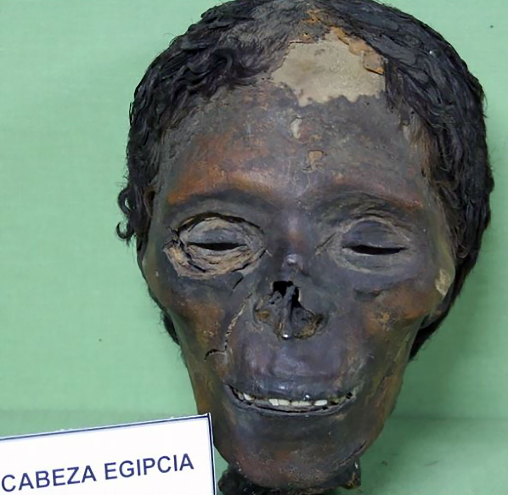 Mummy head showing traces of bleach-linked dermatosis.Photo credit: Museo de Antropología Médica, Forense, Paleopatología y Criminalística, Profesor Reverte Coma