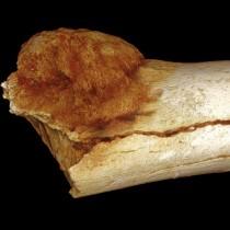Cancer on a Paleo-diet?