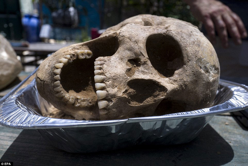 Skull of a 35-year-old Philistine woman discovered in the Philistine cemetery. Credit: EPA