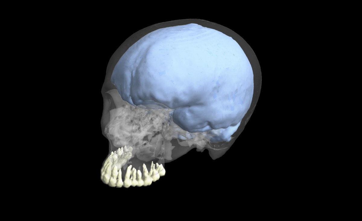 3-D reconstruction of a modern human cranium showing the teeth and endocranial cast. Credit: George Washington University