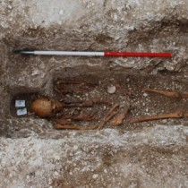 Leprosy strain genotyped from medieval pilgrim at UK burial site