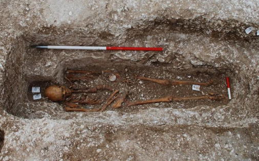 Leprosy strain genotyped from medieval pilgrim at UK burial site. Credit: Roffey, S. and colleagues, PLOS Neglected Tropical Diseases
