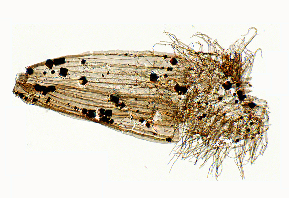 Fossil Loriciferan. Credit: Dr Tom Harvey, University of Leicester