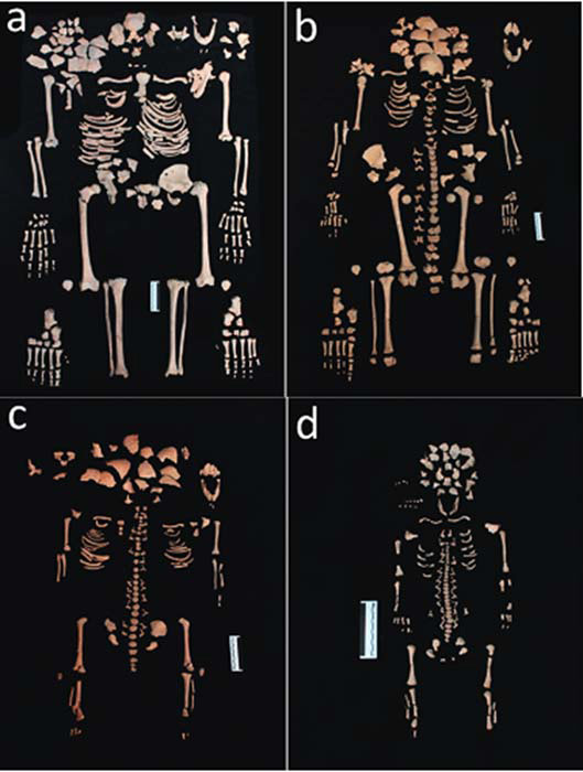 (a) Skeleton of the adult female (b) Skeleton of the 12-year-old sub-adult (c) Skeleton of the 3-year-old sub-adult (d) Skeleton of the 38–40-week-old fetus. (Cesana, D., Benedictow, O.J., & R. Bianucci)